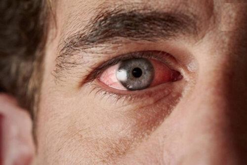 ارتباط قهوهنوشی و گلوکوم (آب سیاه چشم)